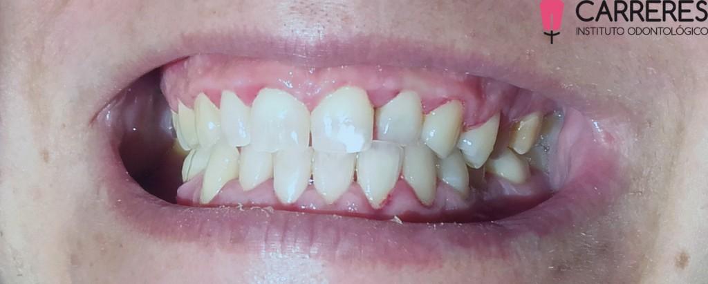 limpieza-dental-pos2-copia