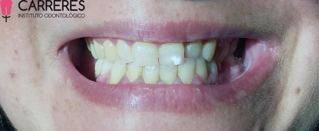 limpieza-dental-previo1-copia