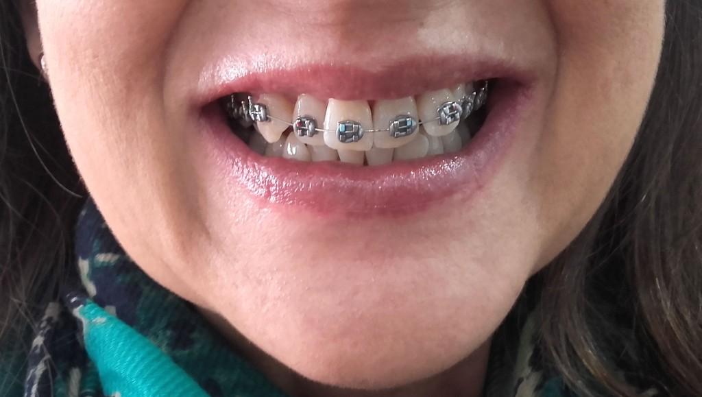 Arcada superior ortodoncia metálica Instituto Carreres