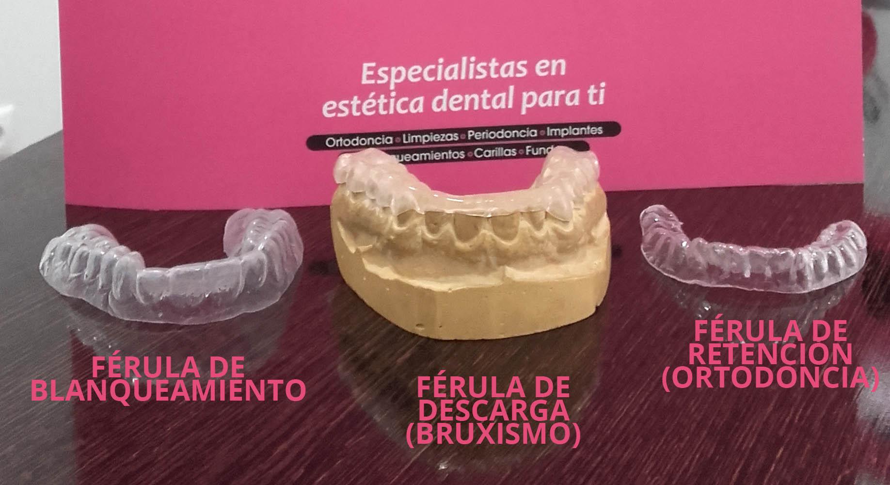Férulas Dentales