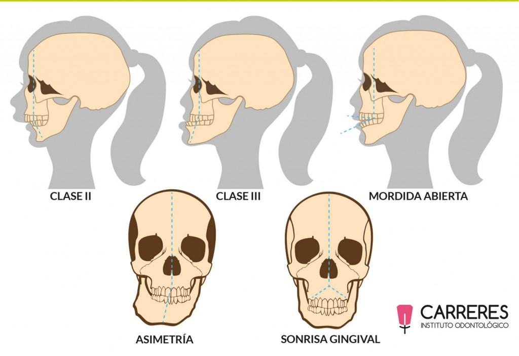 Casos ortognáticos del Instituto Carreres