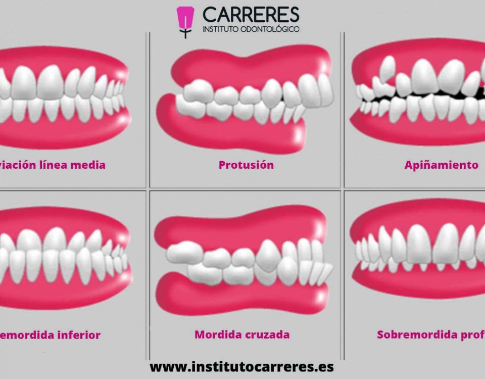 Blog Instituto Carreres Clinica Dental Economica En