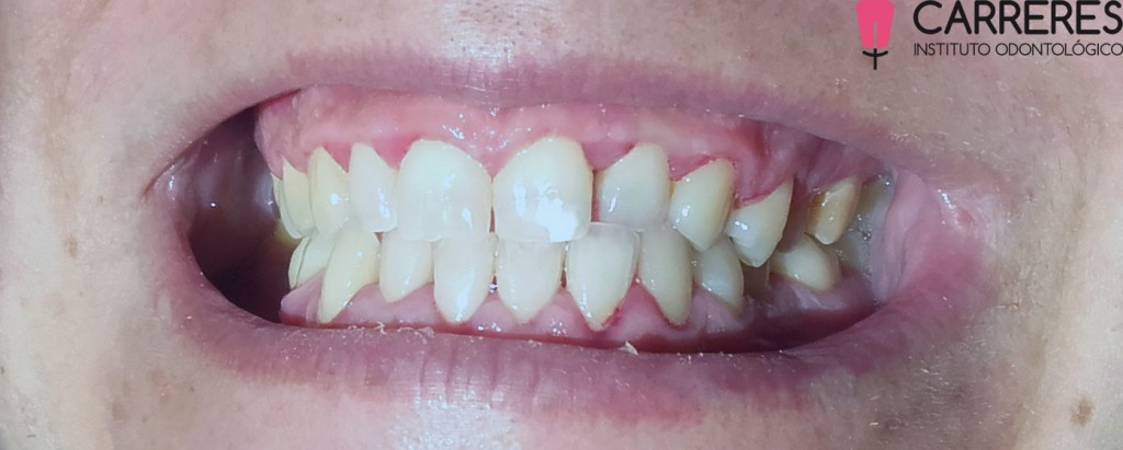 limpieza-dental-pos2-copia