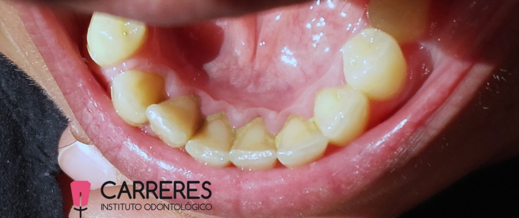 limpieza-dental-previo2-copia