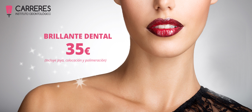 Diamante dental por 35€ en Instituto Carreres