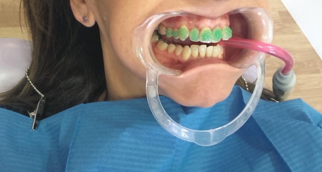 Colocación ortodoncia metálica Instituto Carreres