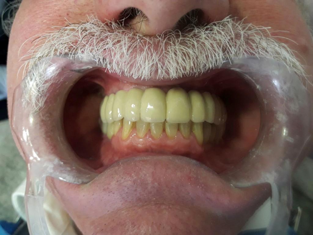 Paciente de rehabilitación implantosoportada Instituto Carreres